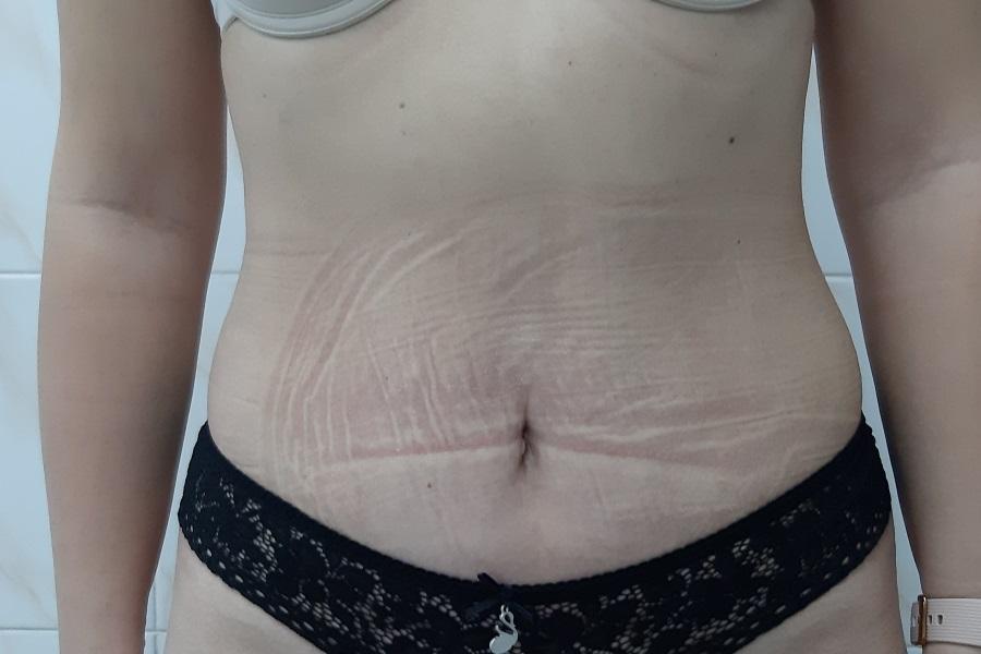 Тело после операции