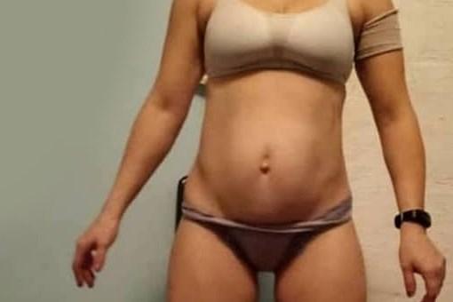 Тело до операции